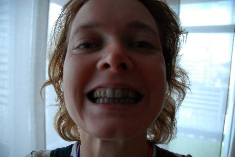 Alice med rödvinsblåa tänder
